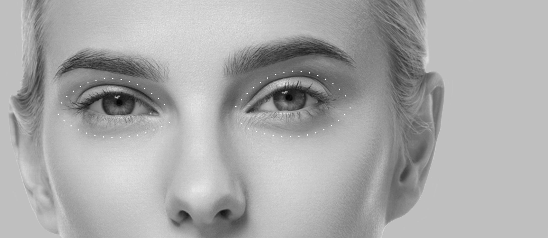 Blépharoplastie d'addition à Lyon - chirurgie du nez et visage | Dr Durbec