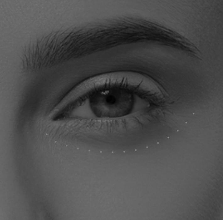 La blépharoplastie inférieure à Lyon - chirurgie du nez et visage | Dr Durbec