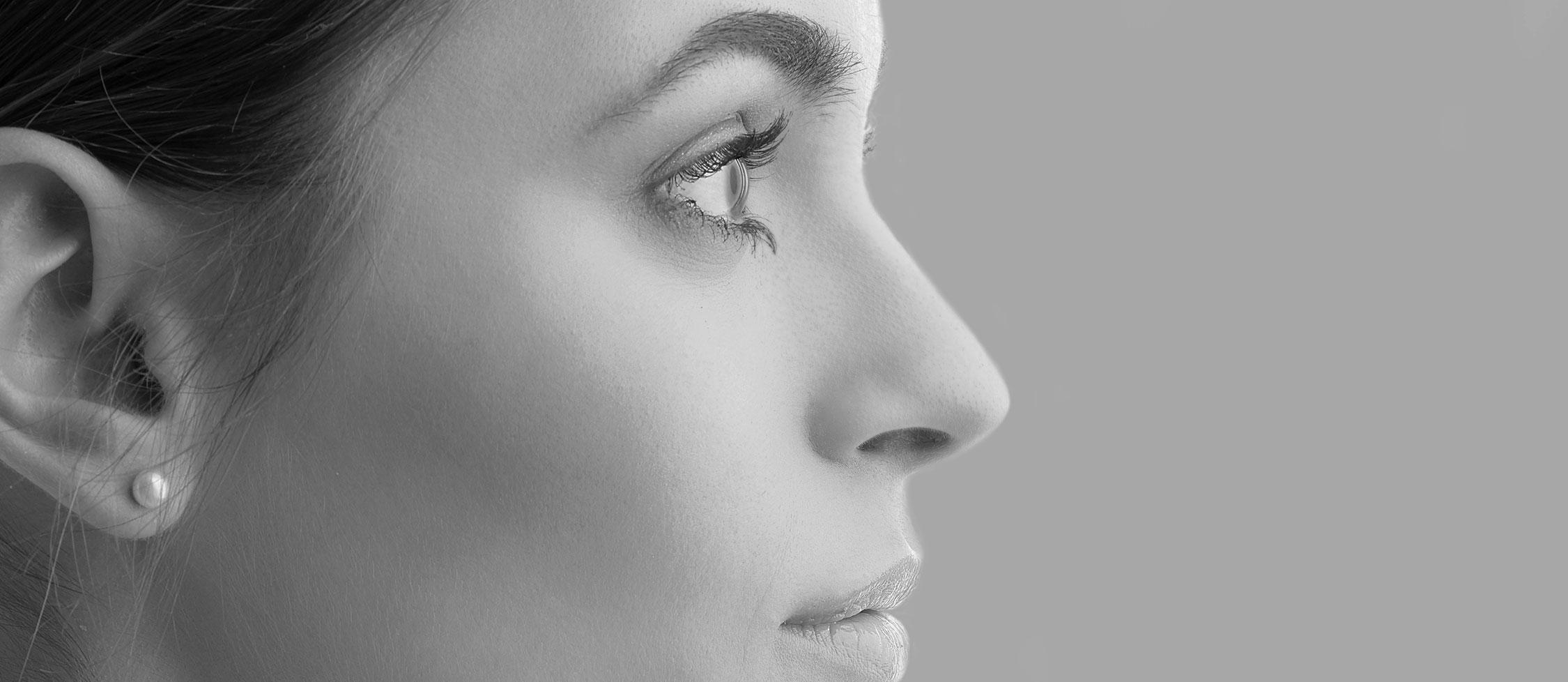 Rhinoplastie de la bosse cartilagineuse à Lyon - chirurgie du nez et visage | Dr Durbec
