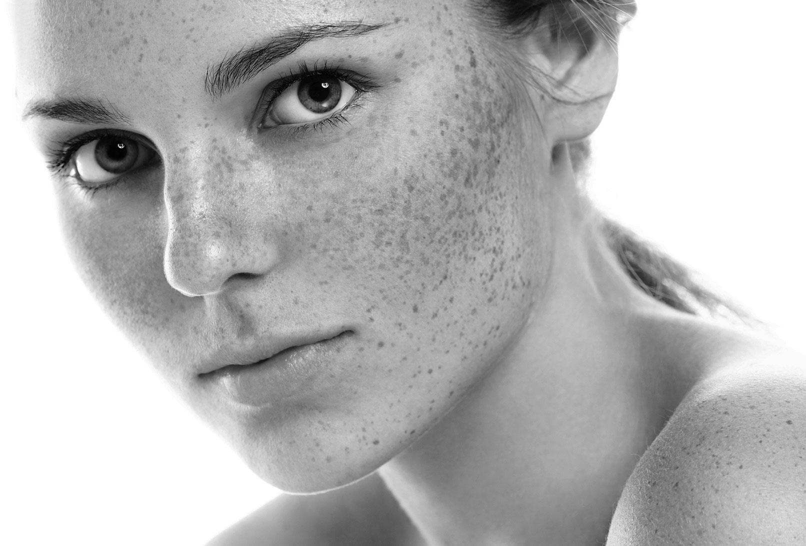 Chirurgie réparatrice du visage à Lyon | Dr Durbec