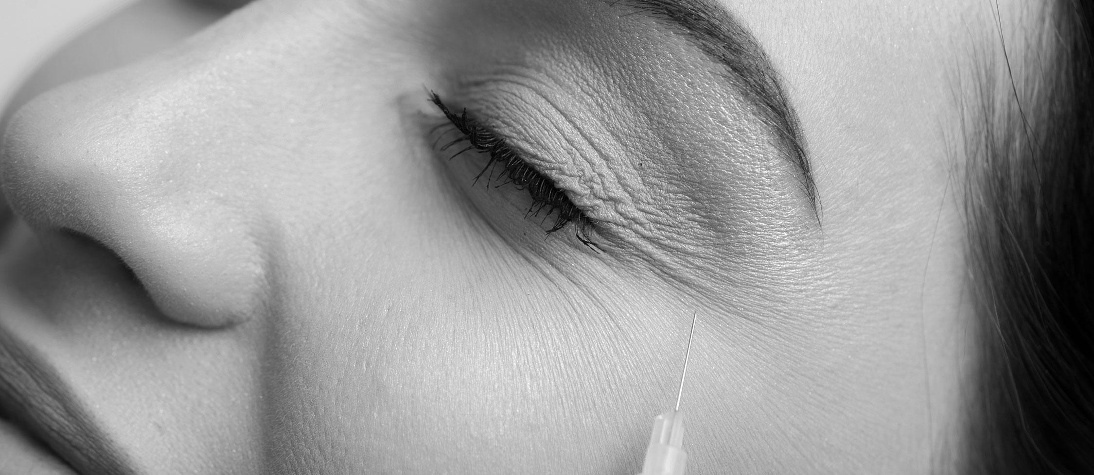 Comblement des rides à Lyon - chirurgie du nez et visage | Dr Durbec