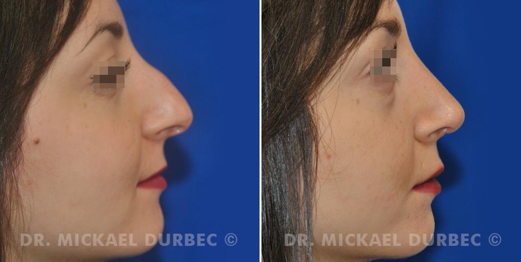 Correction du bosse osteocartilagineuse, pointe tombante, photo avant et après à Lyon   Dr Durbec