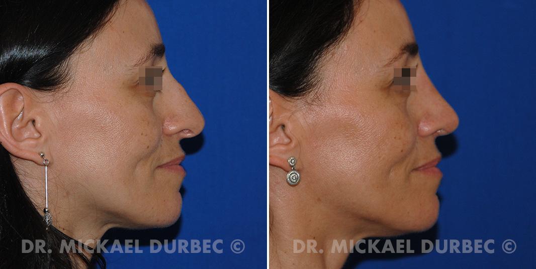 Rhinoplastie, correction du pointe tombante du nez, photo avant et après 3 à Lyon | Dr Durbec