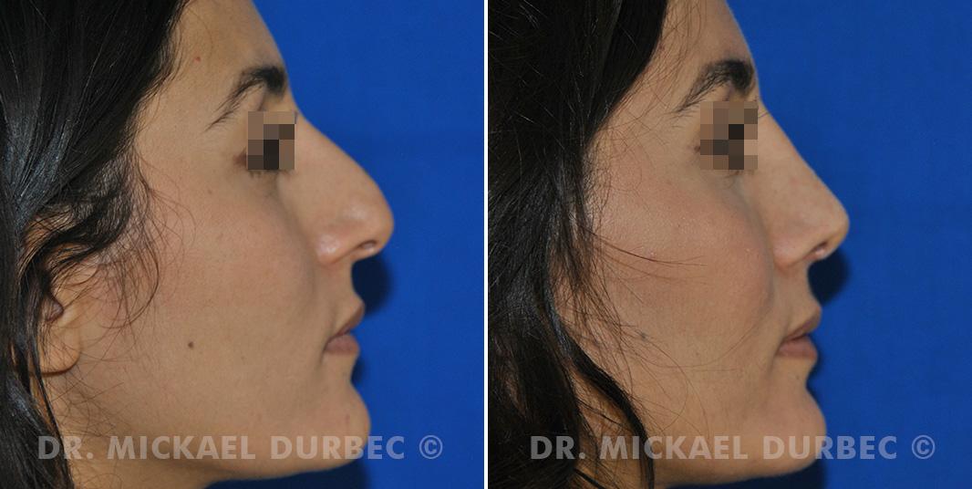 Rhinoplastie, correction du pointe tombante du nez, photo avant et après 2 à Lyon | Dr Durbec