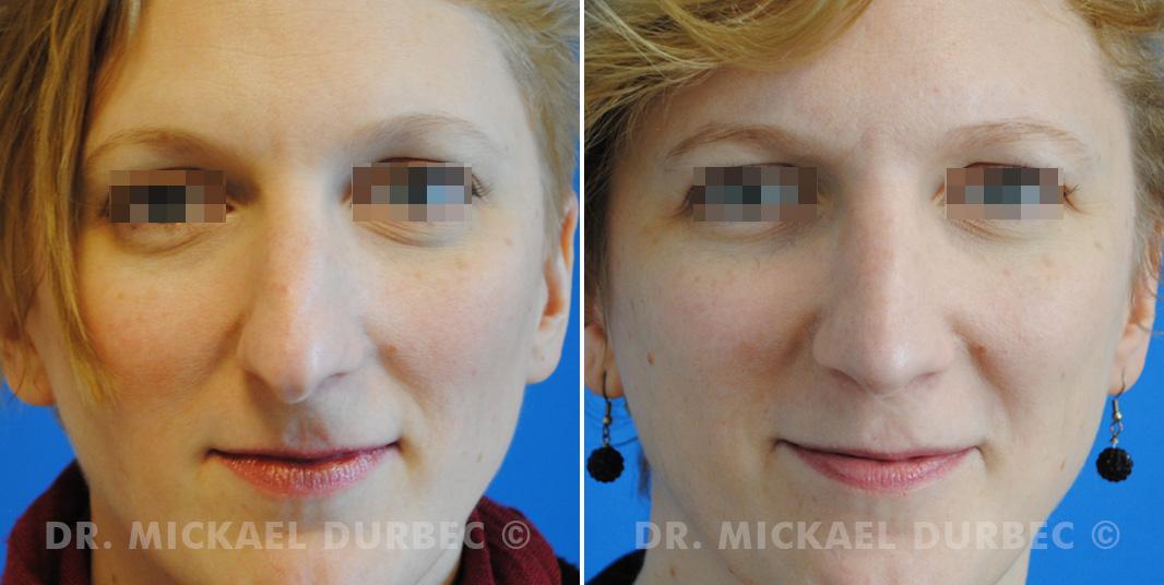 Correction du bosse osteocartilagineuse, pointe tombante, photo avant et après 2 à Lyon | Dr Durbec