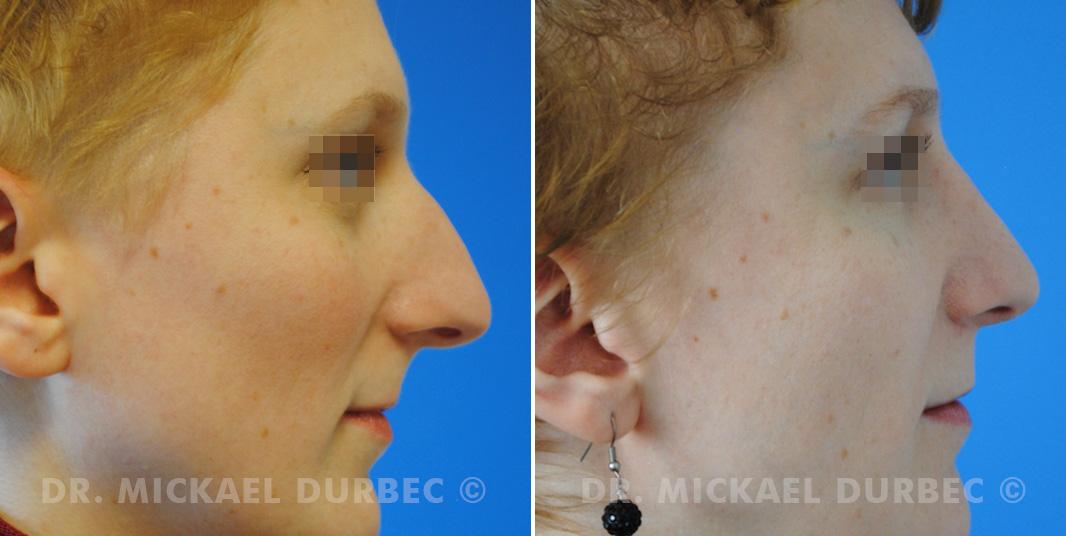 Correction du bosse osteocartilagineuse, pointe-tombante, photo avant et après 2 à Lyon | Dr Durbec