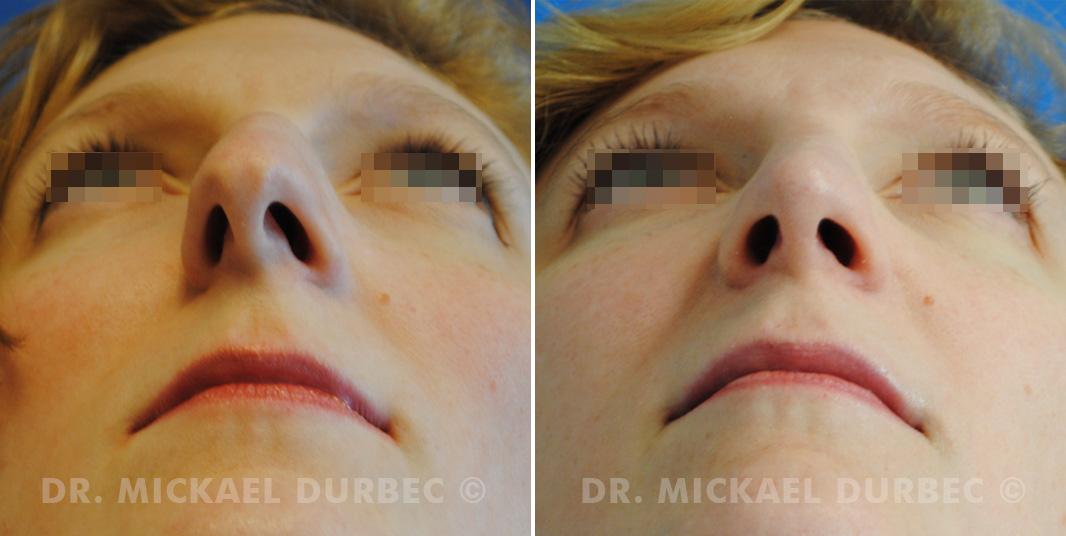 Rhinoplastie, correction du pointe tombante du nez, photo avant et après à Lyon | Dr Durbec