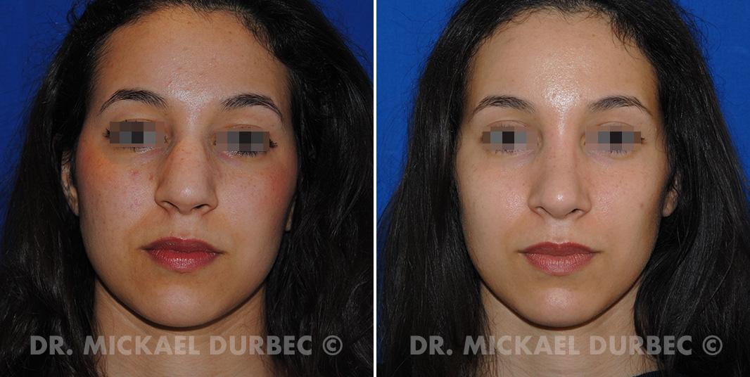 Rhinoplastie, correction du nez large, photo avant et après à Lyon | Dr Durbec