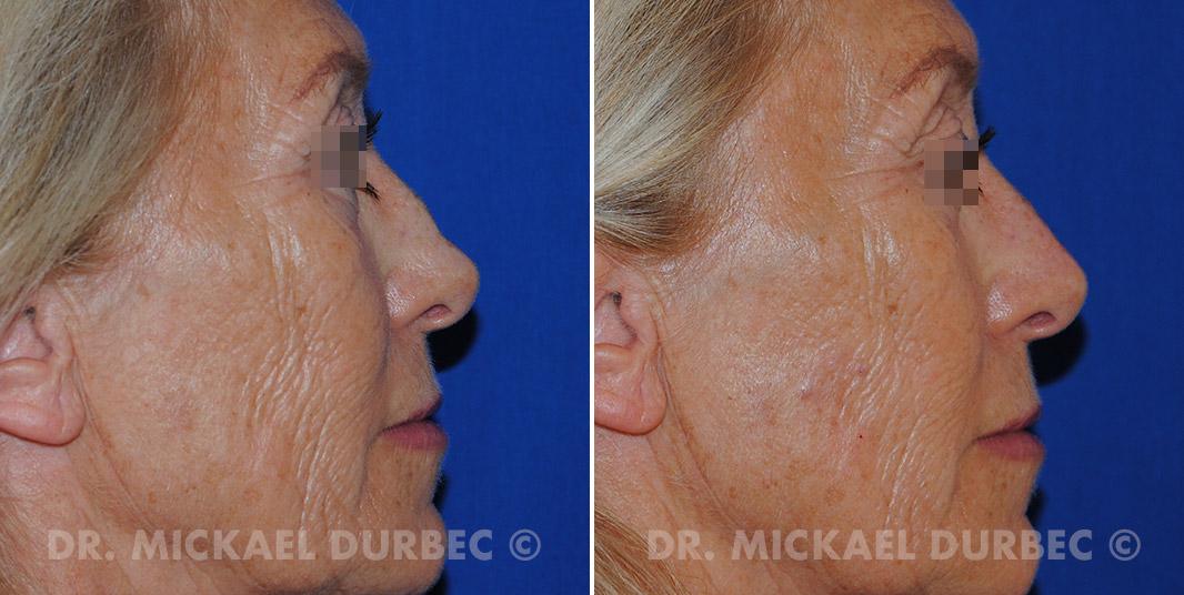La rhinoplastie médicale, photo avant et après à Lyon | Dr Durbec