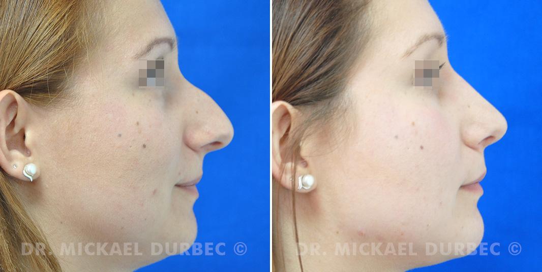 Correction du bosse osteocartilagineuse, nez hyperprojeté, photo avant et après à Lyon | Dr Durbec