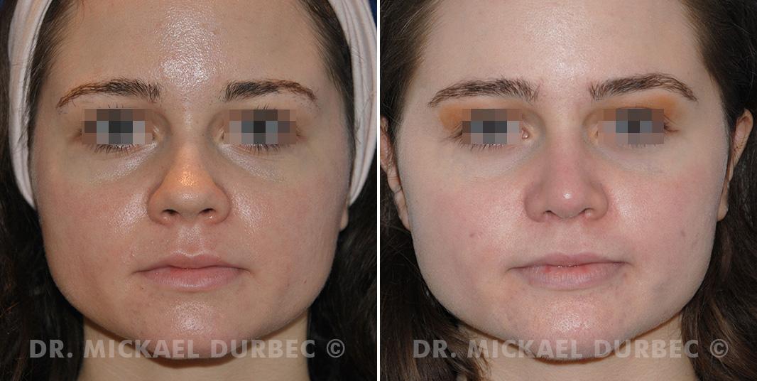 Rhinoplastie, correction du pointe et ailes du nez large, photo avant et après à Lyon | Dr Durbec