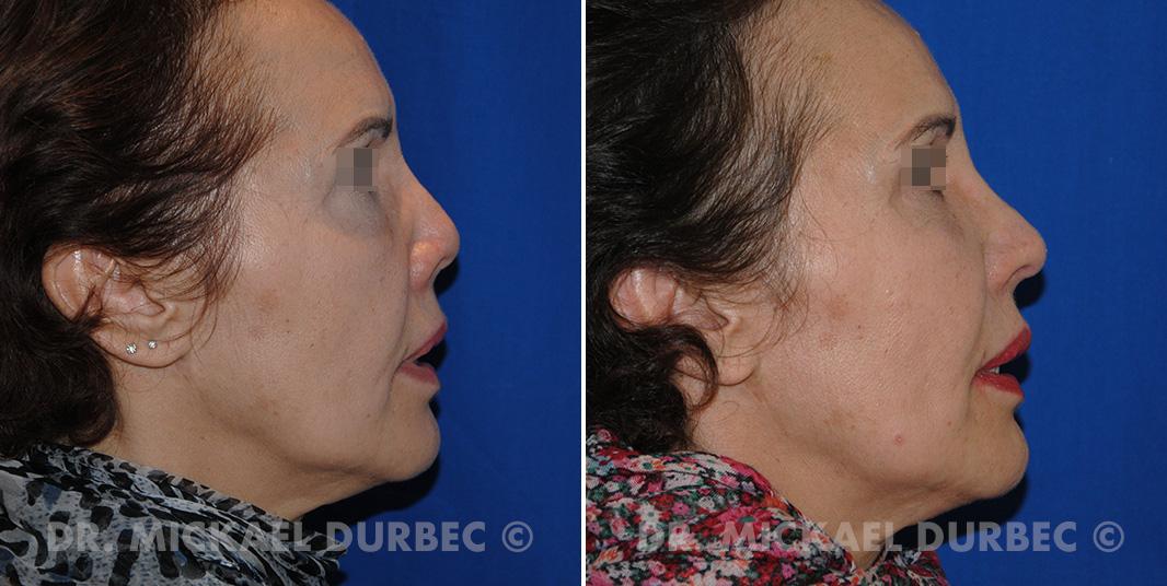 Rhinoplastie secondaire, photo avant et après 3 à Lyon | Dr Durbec