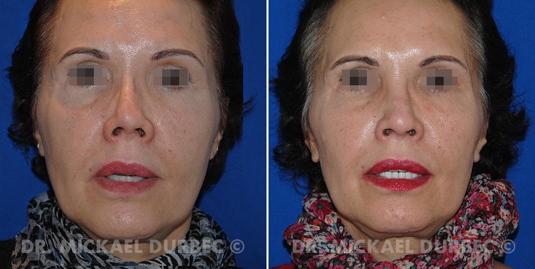 Rhinoplastie secondaire, photo avant et après à Lyon | Dr Durbec