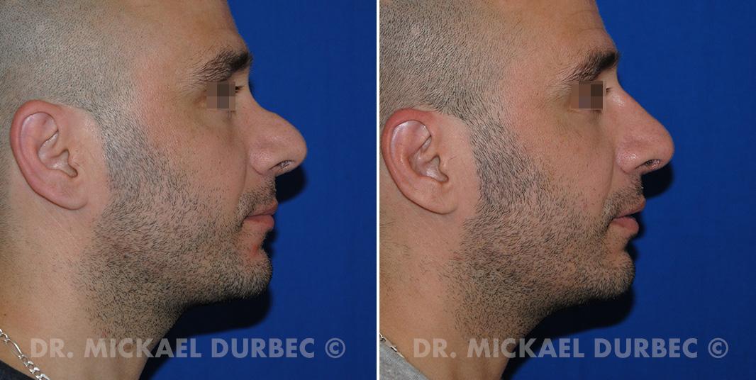 Rhinoplastie secondaire, photo avant et après 2 à Lyon | Dr Durbec